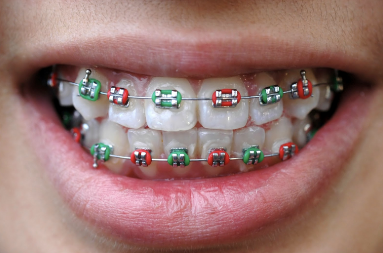 christmas colored braces