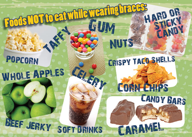 Foods To Avoid Rogers And Andrews Orthodontics Augusta Ga